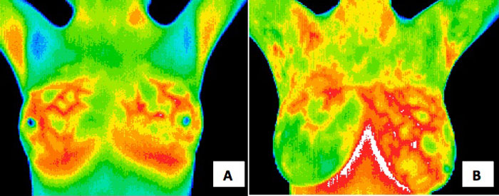 Thermography Image 2
